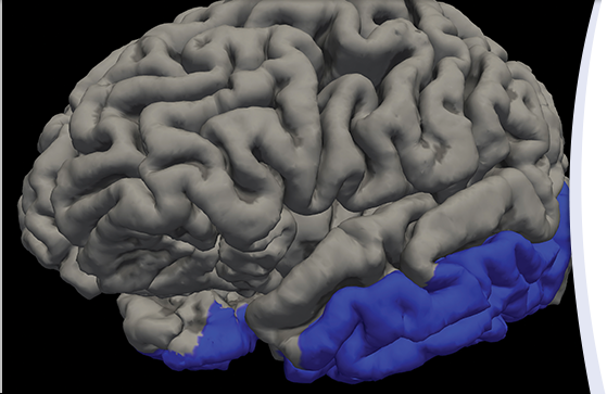 A new University of Florida study examined brain areas (shown in blue) associated with chronic pain and Alzheimer's disease. Illustration by Dr. Jared Tanner.