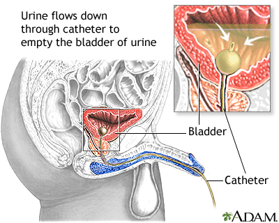 Urinary tract infection - adults | UF Health, University of Florida