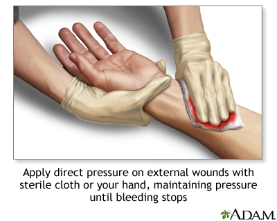 bleeding | uf health, university of florida health, Skeleton