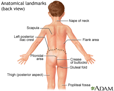 Pilonidal Dimple on kidney flank pain location diagram