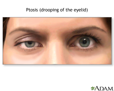 Facial swelling ptosis