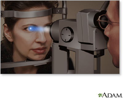 Slit-lamp exam | UF Health, University of Florida Health