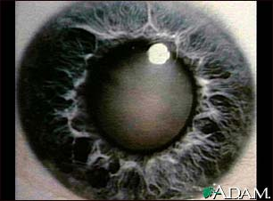 Cataract - close-up of the eye