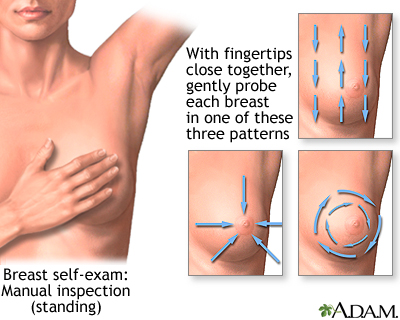 Breast exam florida free