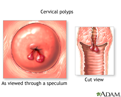 cervical polyps | uf health, university of florida health, Skeleton