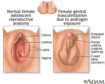 Intersexual genital images
