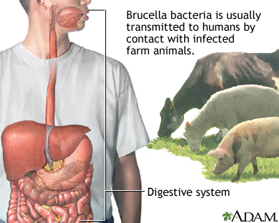 Brucellosis | UF Health, University of Florida Health Brucellosis