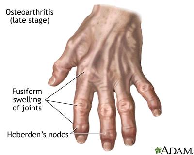 Osteoarthrithis