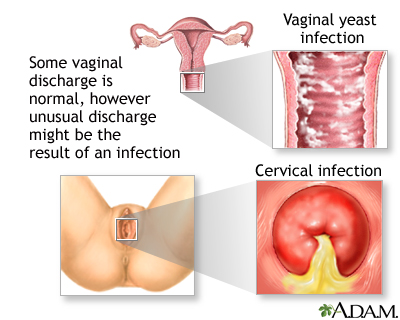 Vaginal itching and discharge - adult and adolescent | UF