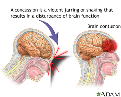 Concussion | UF Health, University of Florida Health