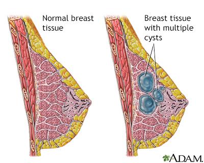 fibrocystic breast disease | uf health, university of florida health, Skeleton