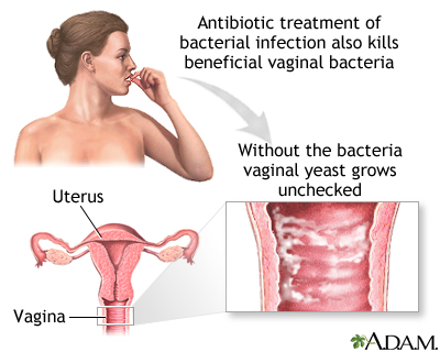 Vaginal yeast infection uf health university of florida for Why does my vagina smell like fish