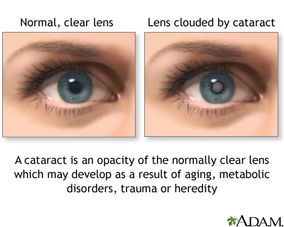 Congenital Cataract Uf Health University Of Florida Health