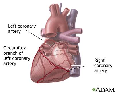 Coronary Heart Disease Uf Health University Of Florida Health