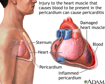 Pericarditis After Heart Attack Uf Health University Of Florida