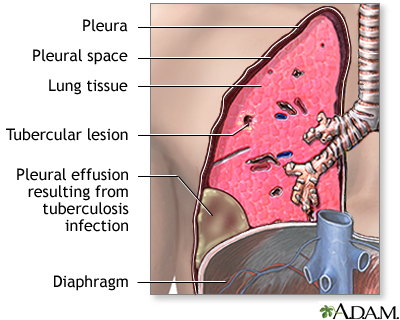 pleural effusion causes diagnosis and treatment - 400×320