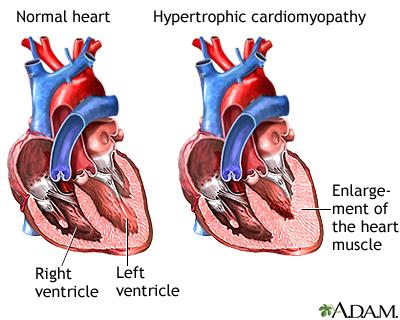cardiomyopathy definition pdf