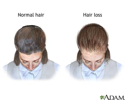 Female pattern baldness uf health university of florida health female pattern baldness pmusecretfo Images