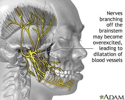Migraine | UF Health, University of Florida Health
