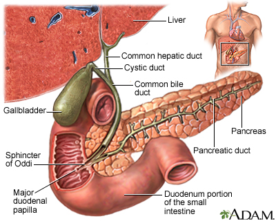 gallstones | uf health, university of florida health, Human Body