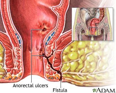 Fistula Uf Health University Of Florida Health