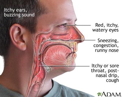 allergic conjunctivitis | uf health, university of florida health, Skeleton