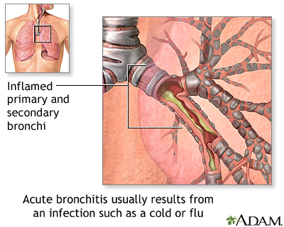 Causes of acute bronchitis