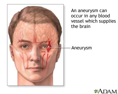 aneurysm in the brain | uf health, university of florida health, Human Body