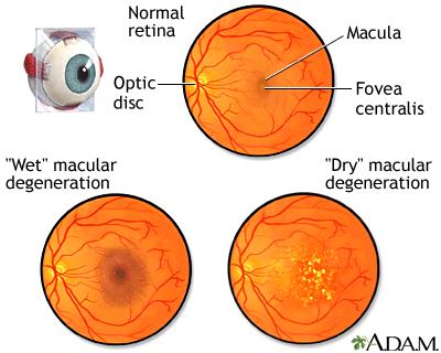 Macular degeneration - age-related | UF Health, University of ...
