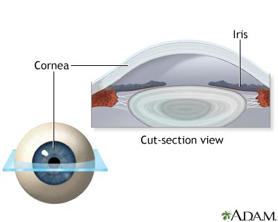 Lasik Eye Surgery Uf Health University Of Florida Health