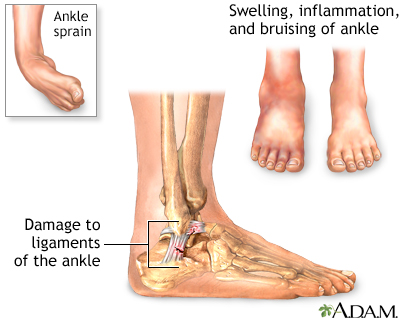 ankle pain | uf health, university of florida health, Skeleton