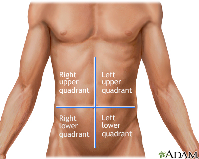 Symptoms of a strained abdominal muscle