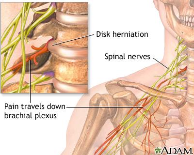 Neck Pain Uf Health University Of Florida Health