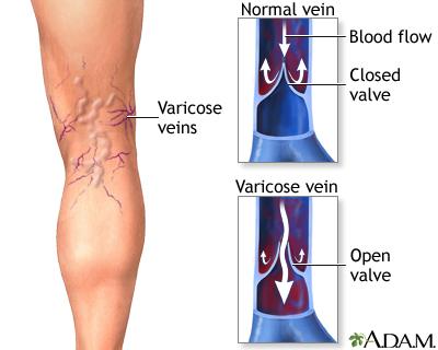 varicose veins uf health, university of florida health
