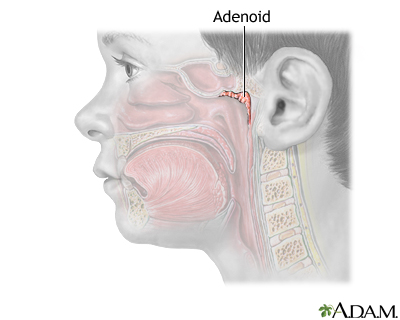 Adenoid removal   UF Health  University of Florida Health