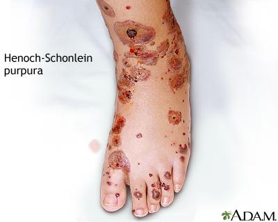 Henoch-Schönlein purpura | UF Health, University of ...