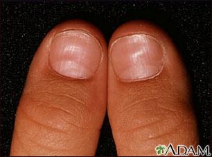 Nail abnormalities | UF Health, University of Florida Health B12 Deficiency Nails