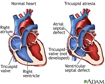 Tricuspid atresia uf health university of florida health images heart ccuart Gallery