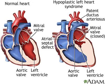 Copeland Scroll  pressors besides Sedan furthermore Hypoplastic Left Heart Syndrome in addition Van likewise Sedan. on parts of ke system