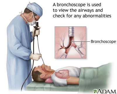 Pdf flexible bronchoscopy
