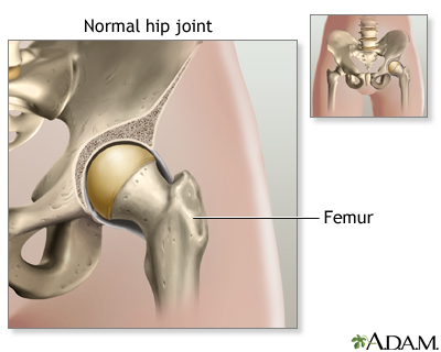 Hip Joint Replacement Uf Health University Of Florida Health