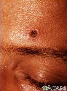 U Of M Health System >> Skin lesion of histoplasmosis | UF Health, University of Florida Health
