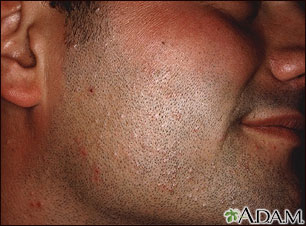 Hiv facial symptoms in pictures