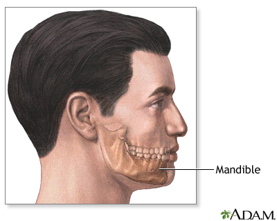 Chin Augmentation Uf Health University Of Florida Health