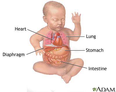 Congenital Diaphragmatic Hernia Repair Uf Health