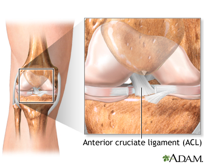 Anterior cruciate ligament (ACL) injury | UF Health, University of ...