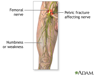 femoral nerve dysfunction | uf health, university of florida health, Muscles