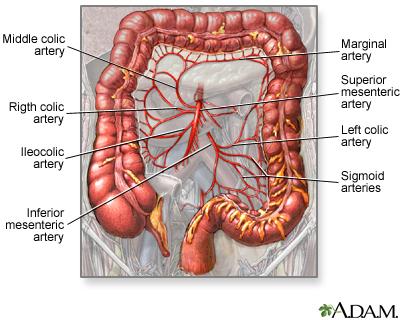 small intestinal ischemia and infarction | uf health, university, Human body