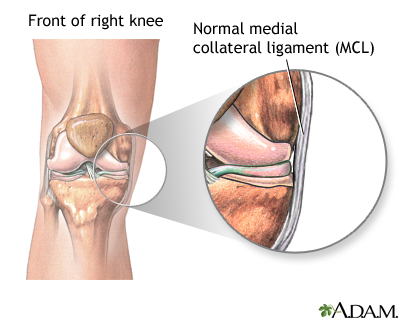 medial collateral ligament (mcl) injury of the knee | uf health, Human body
