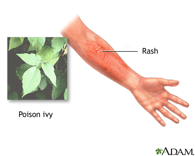 Poison ivy - oak - sumac rash | UF Health, University of